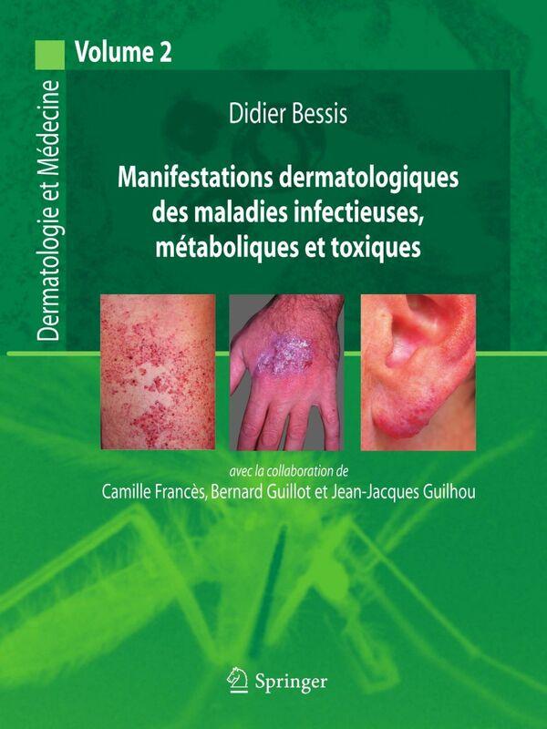 Dermatologie et médecine Volume 2, Manifestations dermatologiques des maladies infectieuses, métaboliques et toxiques