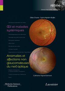 Rétine Volume 5, Oeil et maladies systémiques Anomalies et affections non glaucomateuses du nerf optique