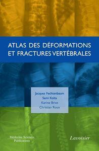 Atlas des déformations et fractures vertébrales