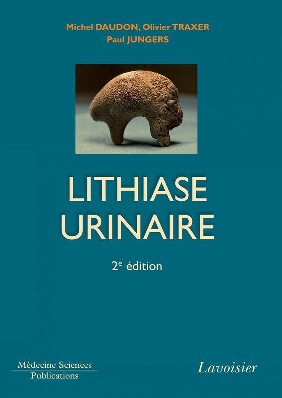 La lithiase urinaire