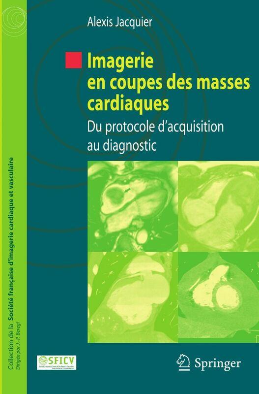 Imagerie en coupes des masses cardiaques : du protocole d'acquisition au diagnostic