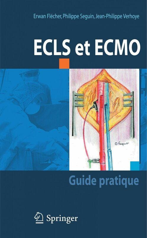 ECLS et ECMO : guide pratique