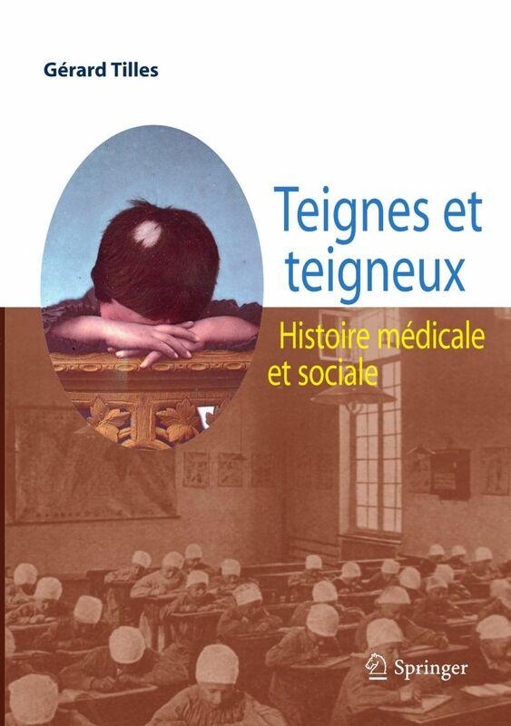 Teignes et teigneux : histoire médicale et sociale