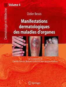 Dermatologie et médecine Volume 4, Manifestations dermatologiques des maladies d'organes